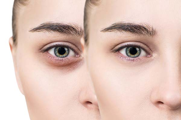 How to remove dark circles under the eyes
