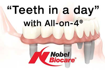 Denture Clinic services - All-on-4 teeth in a day