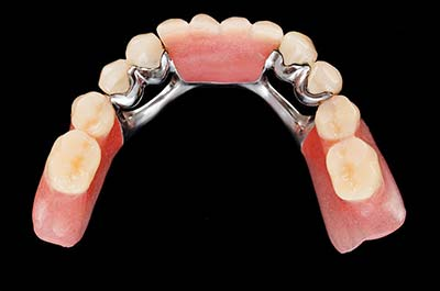 Denture Clinic services - chrome dentures