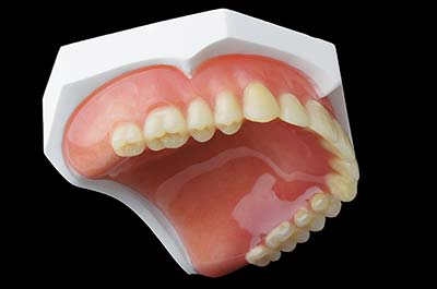 Denture Clinic services - denture relines