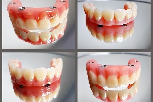 Dentures – bright and shining smiles