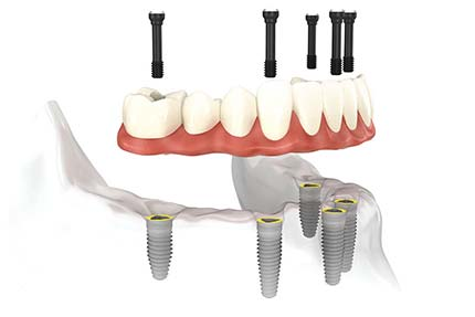Implant retained lower crown of teeth on multiple fixings