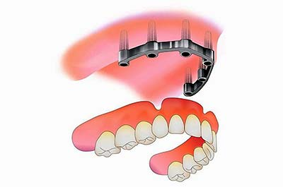 Denture Clinic services - implant retained dentures