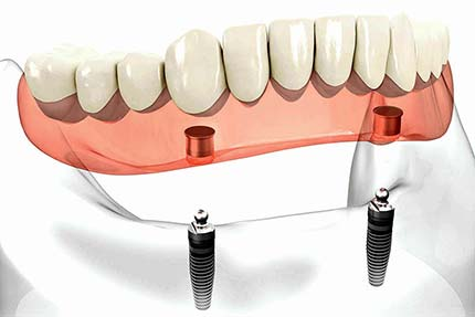 Implant retained lower overdenture on two fixings
