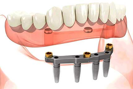 Implant retained lower overdenture on All-on-4 bar