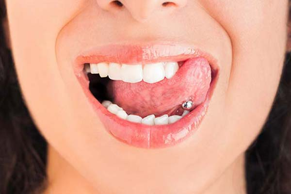 Oral piercings and dental health