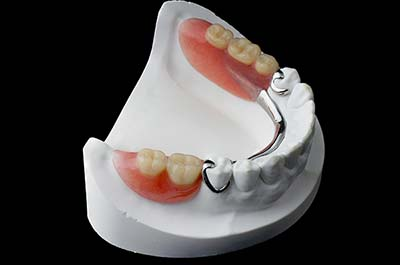 Denture Clinic services - partial dentures