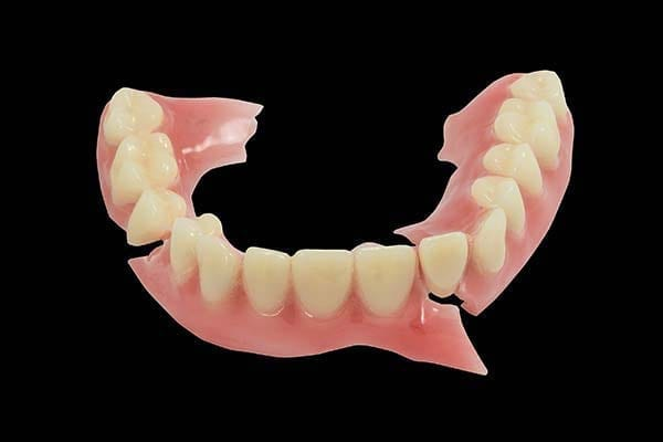 same day denture repairs, broken dentures