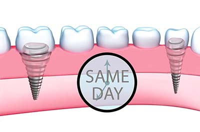 Denture Clinic services - same day teeth
