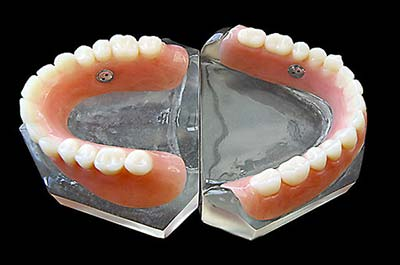 Denture Clinic services - suction dentures