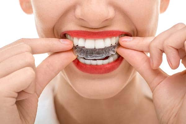 The secret of invisible tooth straightening