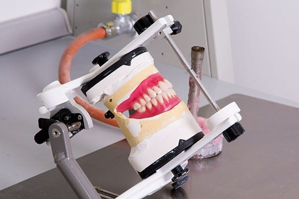 A special look from custom dentures