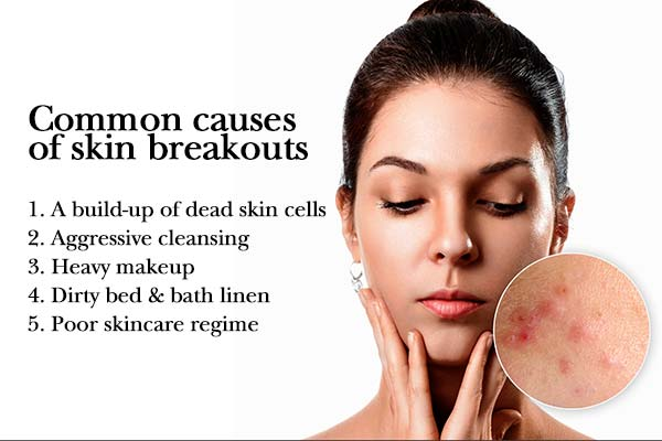 common causes of skin breakouts